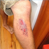 For The Most Part This Type Of Injury Is Fairly Minor However If Mistreated That Knee Or Hand Abrasion Could Easily Become Infected